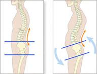 muskelinflammation rygg behandling